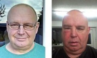 Стоматолог 57-ми летнего Ричарда Огдена, графство Ланкашир, А...