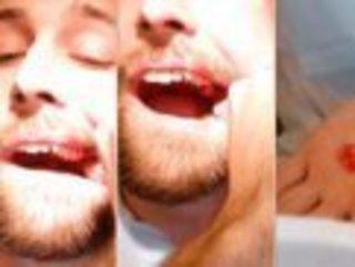 Джеспер Рилтоф, 25-ти летний студент-стоматолог Институ...