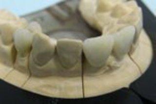 Мнения отечественных зуботехников о том, что представляют из себя...