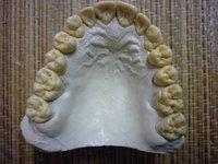 Зуботехнической лаборатории требуется подготовщик зубного техника...