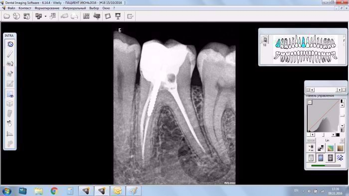 CARESTREAM DENTAL Комплект CS 2100 + RVG 5100 NaviStom