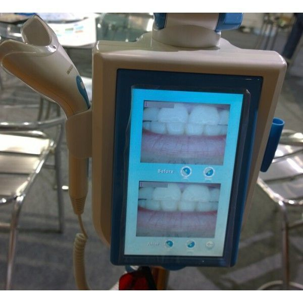DENTALTECHNOLOGY CI 1887ic NaviStom